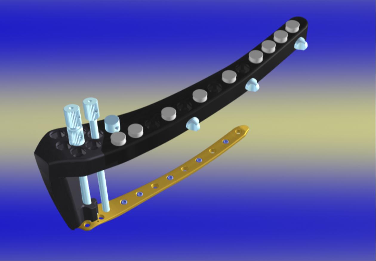 Implantate zur Stabilisierung des Knochens: Moderne winkelstabile, überbrückende Platte