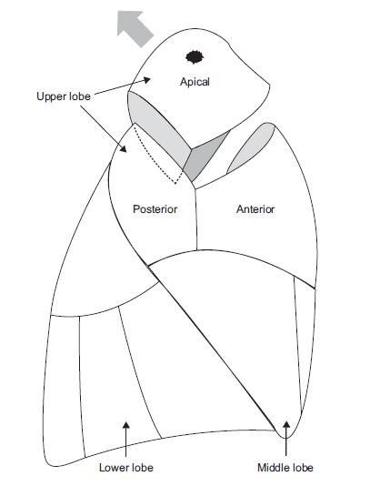 Illustration der Lungensegmentresektions-Technik