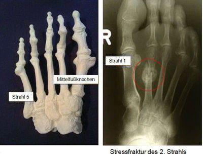 Röntgenaufnahme Stressfraktur des 2. Strahls
