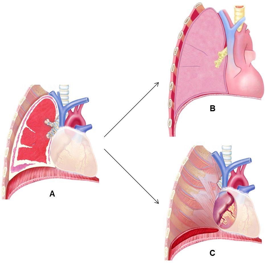 Illustration Operationsverfahren Extrapleurale Pneumonektomie