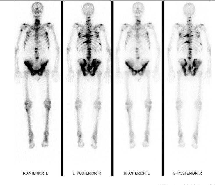 Skelettszintigrafie bei einem Patienten mit multiplen Knochenmetastasen