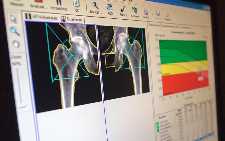 Eine Röntgenaufnahme der Hüfte