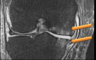 Röntgenbild Schmerzhaftes Knochenödem (helle wolkige Zonen im sonst dunklen Knochen, Pfeile) an der Knieinnenseite.