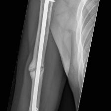 Röntgenbild Pseudoarthrose