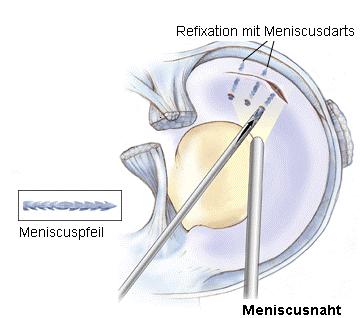 Illustration von der Kniegelenks-Spiegelung (Arthroskopie)