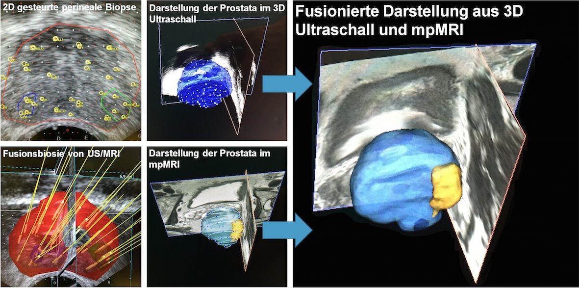 Template Biopsie