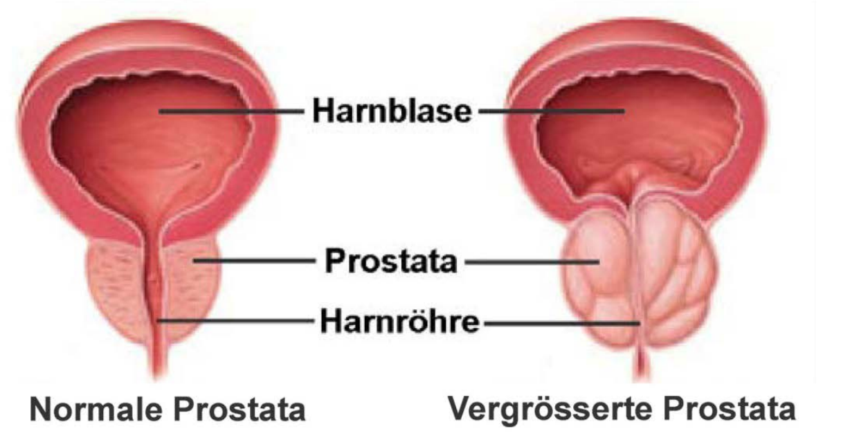 Prostata Illustration