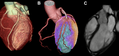 Kardiale Bildgebung mittels CT (A), Hybrid-Untersuchung (hier Kombination aus CT und PET) (B) und Herz-MRI (C) bei verschiedenen Patienten und Patientinnen.