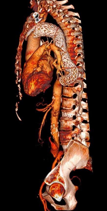 CT Herz Und Wirbelsäule