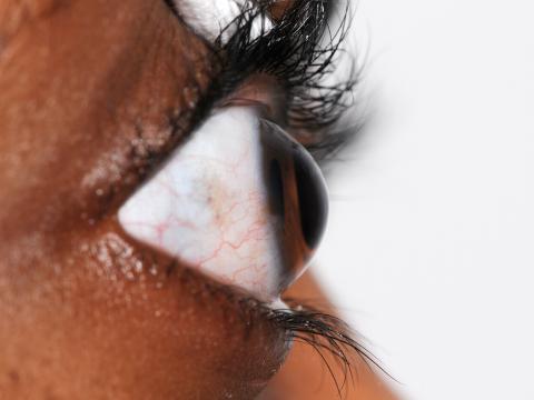 Kegelförmige Wölbung am Auge zu sehen von der Seite