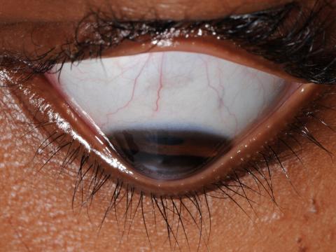 Wölbung der Augenlidkante von oben
