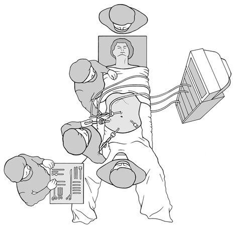 Visualisierung einer laparoskopischen Kolonsegmentresektion