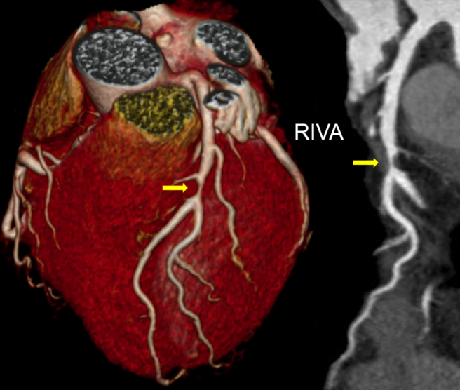CT Aufnahme des Herzens