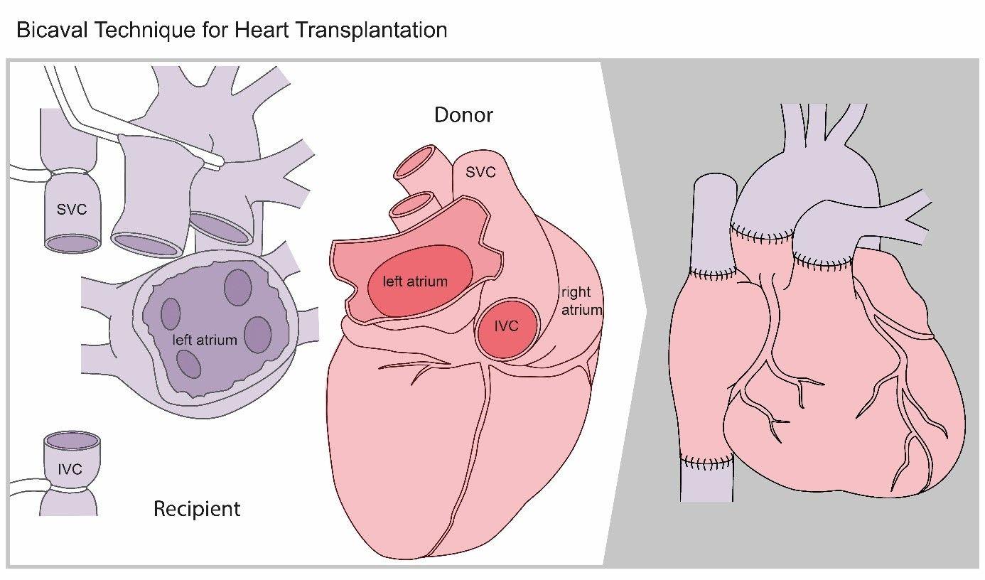 Operationsskizze Herztransplantation