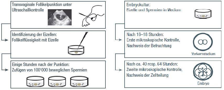 Ablauf der In-vitro-Fertilisation