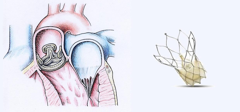 Ersatz der Aortenklappe mit einer biologischen Prothese (links). Katheter-technische Klappe (rechts) innerhalb einem metall-armierten Stent zur Selbstverankerung
