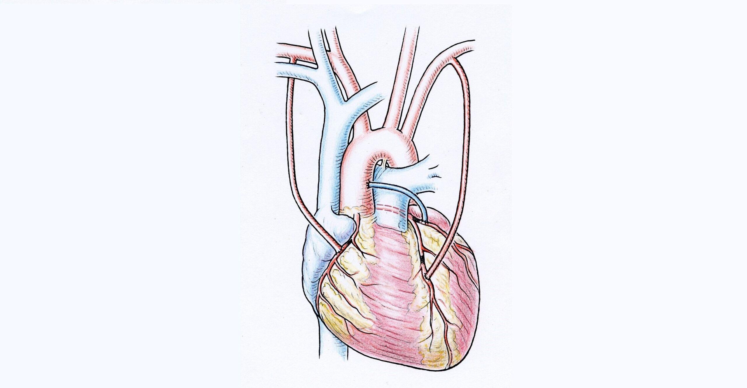 Beispiel einer Bypass-Operation mit Verwendung beider Brustwandarterien und einer Beinvene