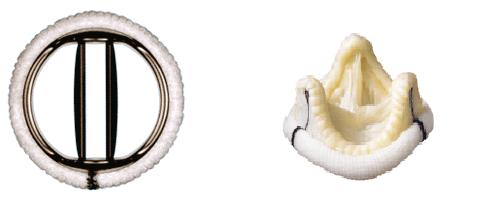 Mechanische Klappe (links) und biologische Klappe (rechts)