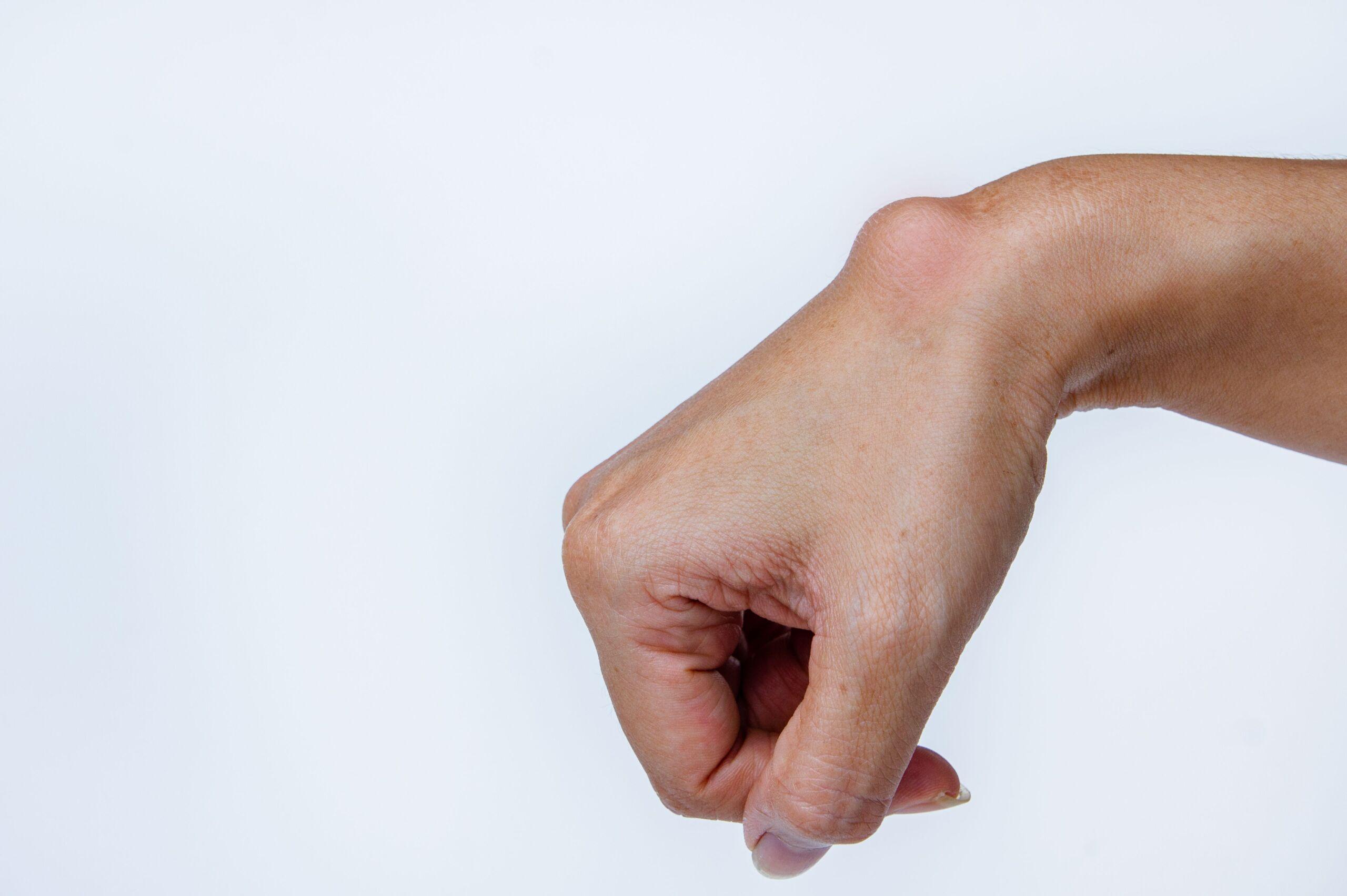 Handgelenk einer Frau mit einem Ganglion