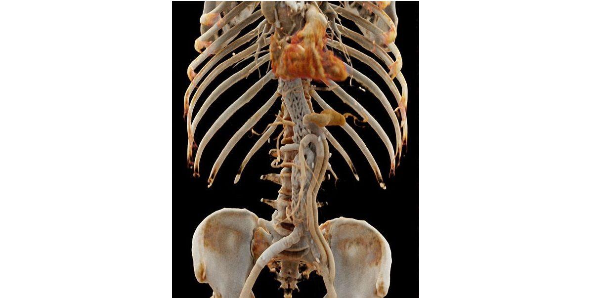 3D Bild (cinematic rendering) einer CT-Angiographie einer Patientin nach endovaskulärer Stenteinlage in die Bauchschlagader durch die interventionelle Radiologie.