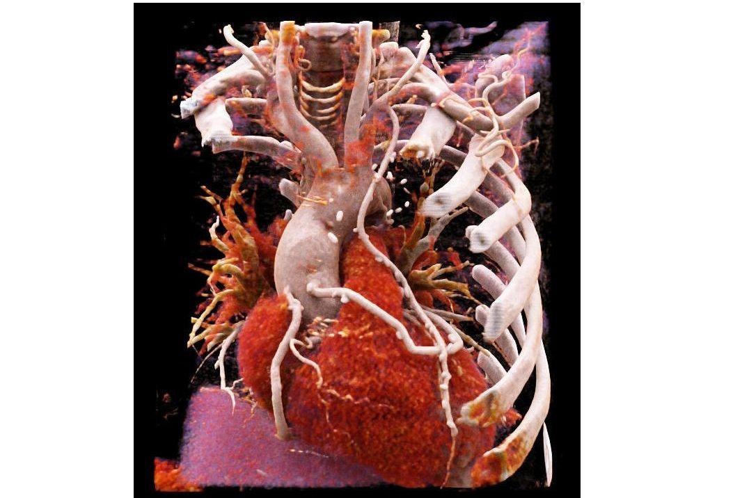 Abbildung 1: 3D-Darstellung des Herzens mittels Herz-CT bei einem Patienten nach Bypassoperation mittels cinematic rendering.