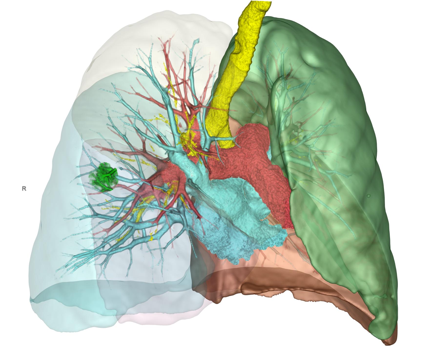 3D-Darstellung der Lunge und des zu resezierenden Tumors