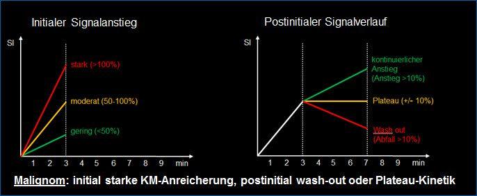Beurteilung MRI Diagramm