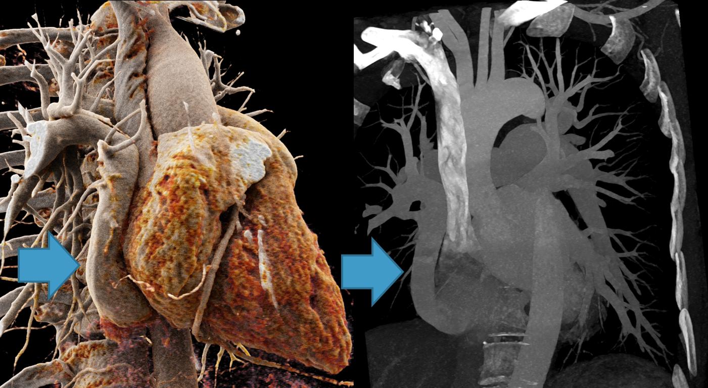 Abbildung 1: CT-Angiographie einer Patientin mit partieller Lungenvenenfehlmündung. Der venöse Abfluss des rechten Lungenoberlappens und des Mittellappens mündet hier fälschlicherweise in die unter Hohlvene (blauer Pfeil), einer sogenannten «Scimitar-Vene» entsprechend.