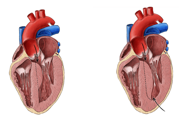 Resektion bei einer hypertroph-obstruktiven Kardiomyopathie (links durch die Aortenklappe bei begrenzter Ausprägung, rechts sowohl durch die Aortenklappe als auch durch die Spitze der linken Kammer bei ausgeprägter Form)
