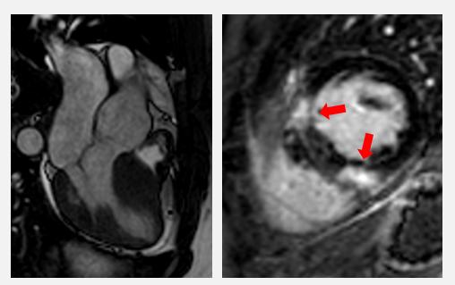 Herz-MRI eines Patienten mit HCM. Es zeigt sich eine deutliche Hypertrophie des Septums (links) sowie eine typische Fibrose, betont am Ansatz des rechten Ventrikels (rechts, rote Pfeile).