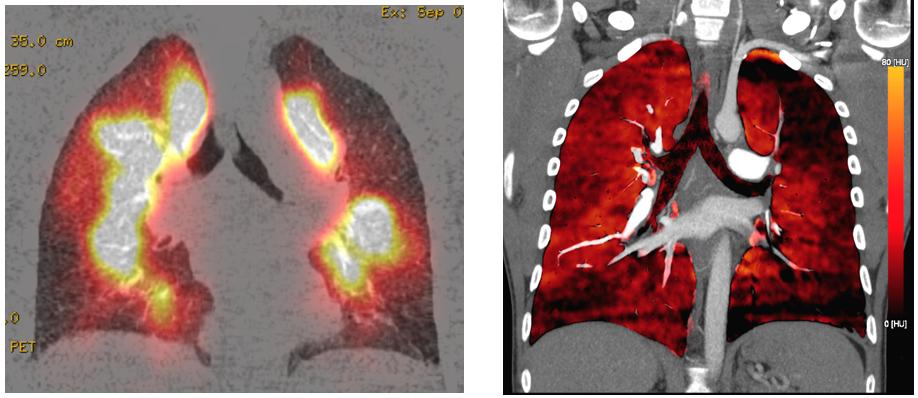 Perfusionsszinzigraphie (links) und Dual-Energy CT (rechts) desselben Patienten mit peripheren Perfusionsausfällen bei chronischer Lungenembolie.