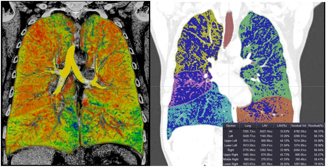 Lungendensitometrie zur Darstellung der Verteilung des Emphysems und Quantifizierung des Lungenemphysems