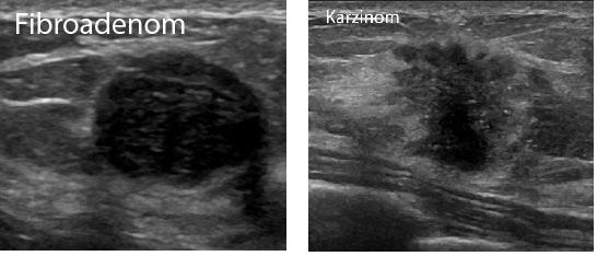 Fibroadenom und Karzinom