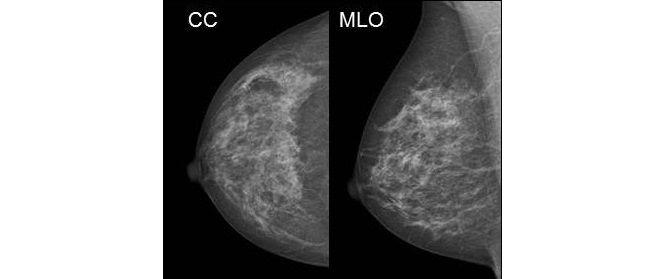 Projektionen der Mammografie aufnahme