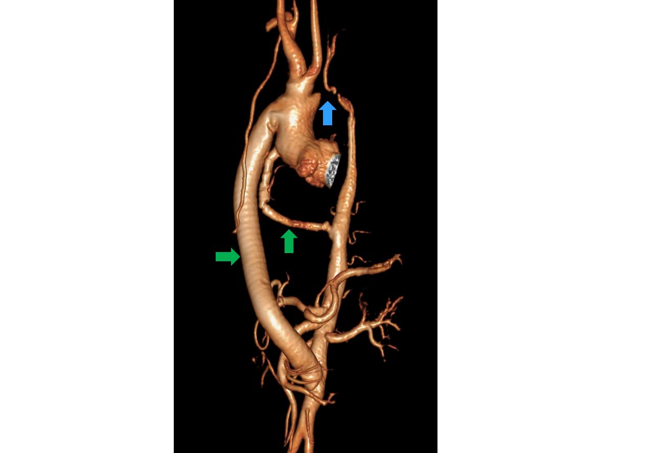 Abbildung 3: MRI Angiographie der Aorta eines Patienten mit schwerer Aortenisthmusstenose (blauer Pfeil) und operativer Anlage zweier extra-anatomischer Aorten-Bypässe (grüne Pfeile).