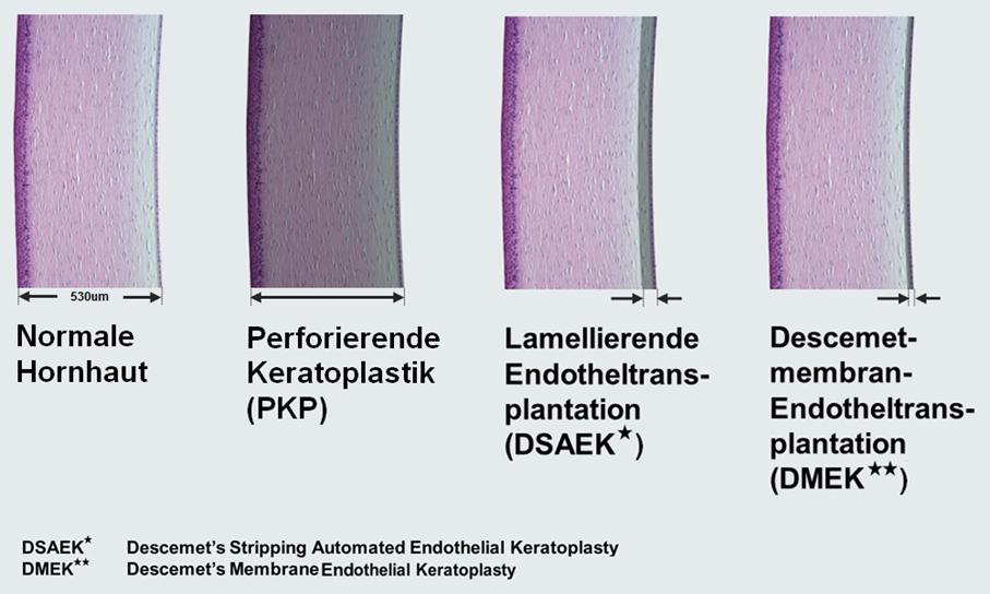 Verfahren der Hornhauttransplantation, Illustration