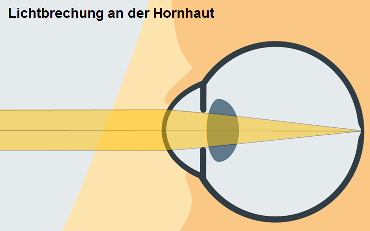 Illustration Lichtbrechung an der Hornhaut