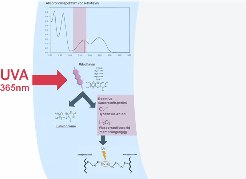 Riboflavin-UVA-Kollagen-Crosslinking der Hornhaut