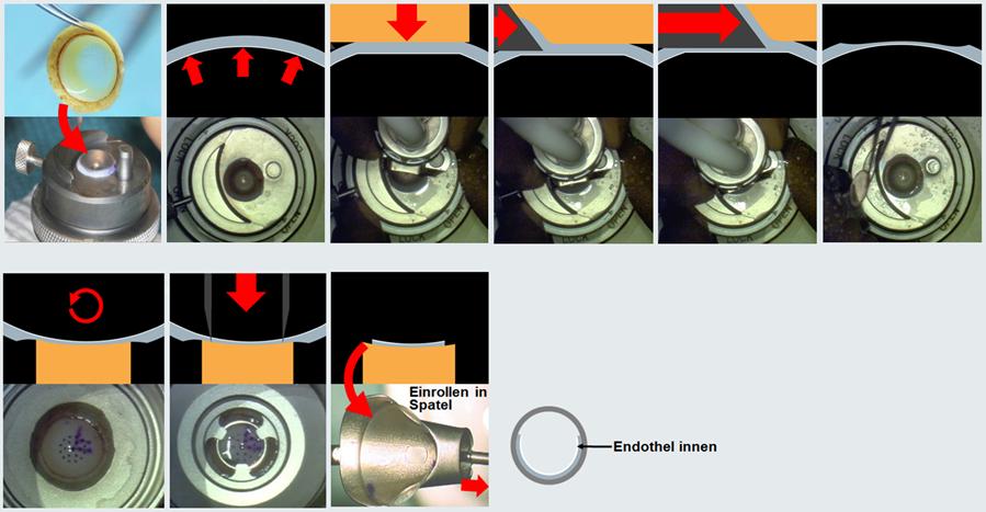 Ablauf Spender-Hornhauttrepanation
