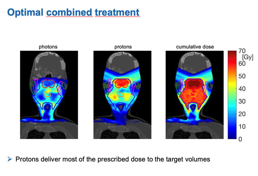 Abbildung Dissertation zum Thema Kombinierte Photonen-Protonen-Therapie