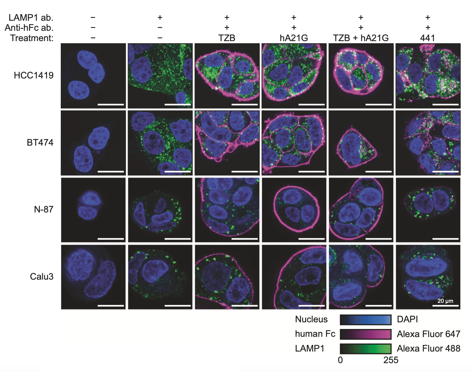 """The engineered bi-paratopic antibody termed """"441"""" induces internalization and degradation in HER2-overexpressing cell lines, while all controls do not. This is seen by the disappearance of the continuous staining (magenta) on the outside, and the appearance of punctate staining in lysosomes (green). This effect is only seen with this particular specially engineered biparatopic construct, while other similar antibodies do not show this. Because of this unique effectivity in tumor xenografts, the antibody is now further developed for clinical trials."""